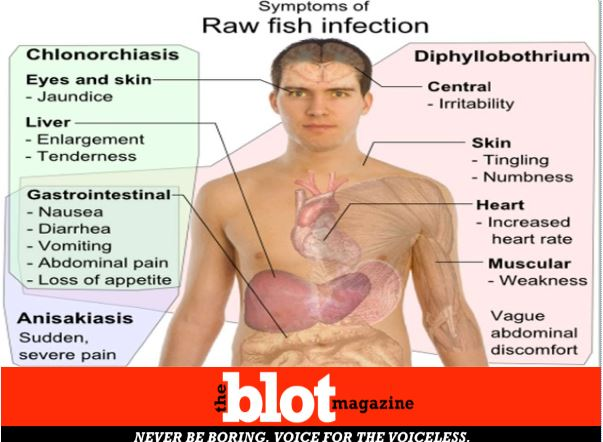 Dangers of Eating Raw Sushi, from Parasites to Listeria