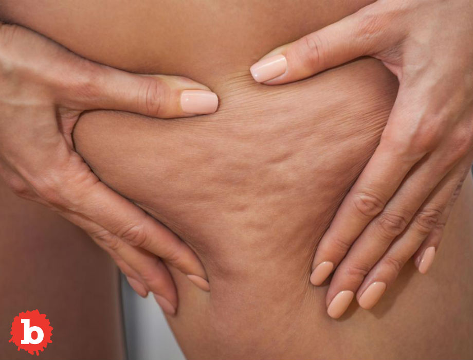 4 Simple and Proven Ways Prevent Cellulite
