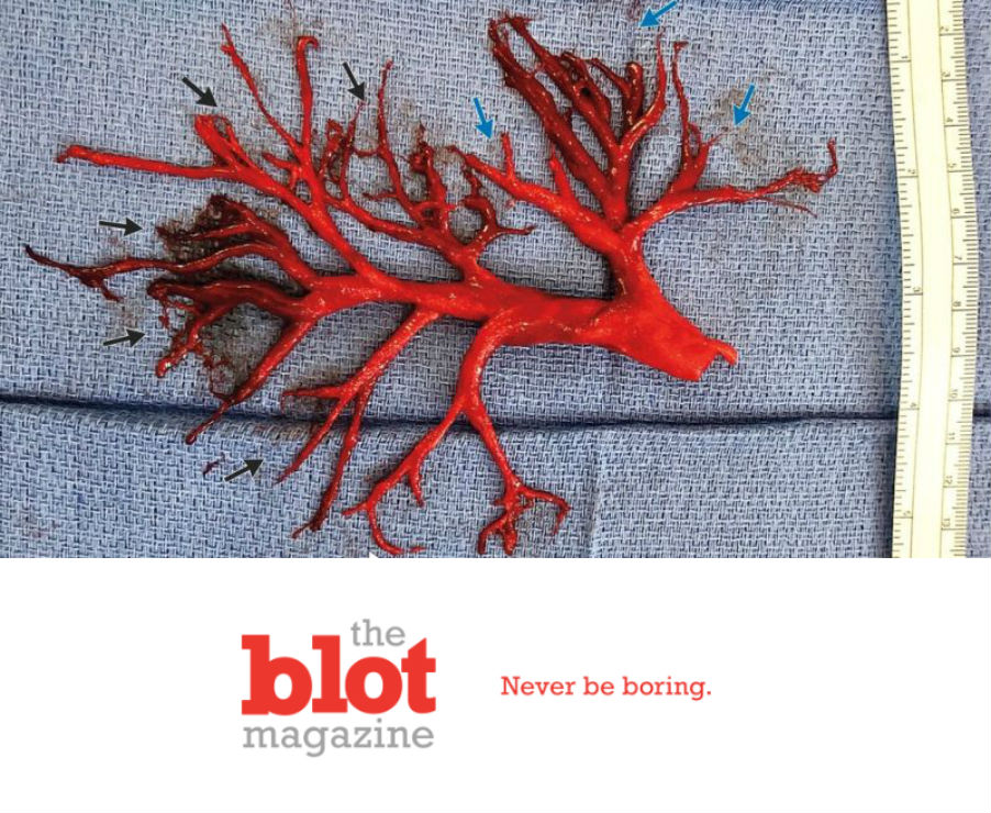 Man Coughs Up Coral Shaped Blood Clot For Real