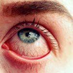 Scottish Woman Given Erectile Dysfunction Cream for Eyes