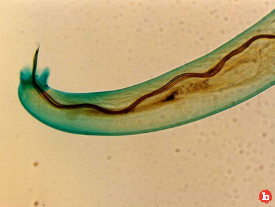 Reports of Three More Cases of Brain Burrowing Parasitic Worms in Hawaii