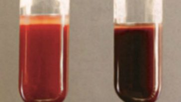 Toothache Treatment Turns Woman's Blood to Chocolate Brown Color