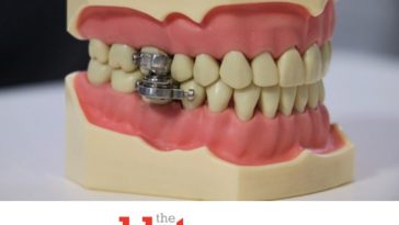 Insane DentalSlim Weight Loss Device Locks Your Mouth Closed?